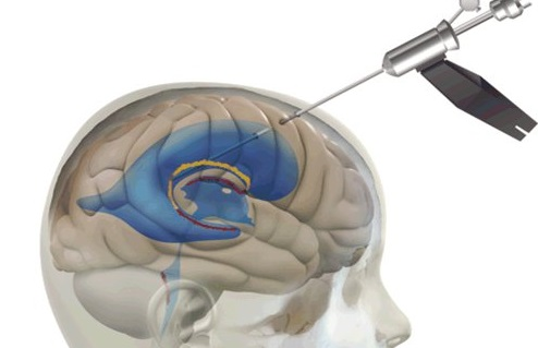 Peruvian Association of Neuroendoscopy