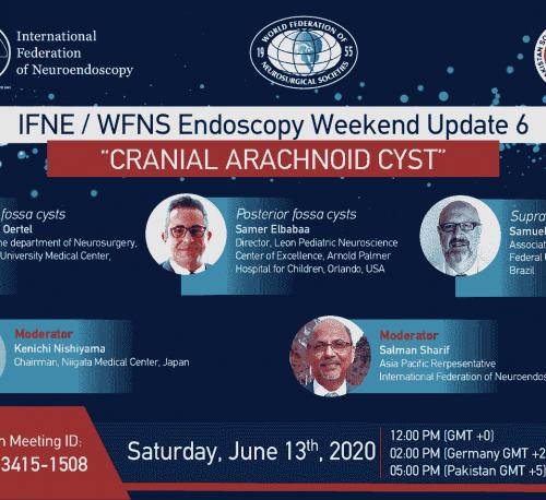 Arachnoid Cyst IFNE webinar, APNE Asociación Peruana de Neuroendoscopía